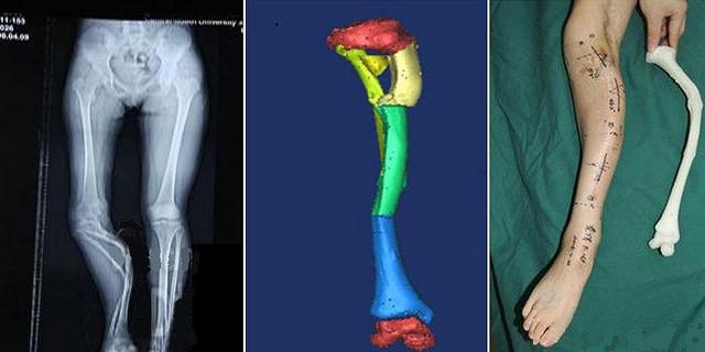 Druk 3D pomaga ratować życie i zdrowie